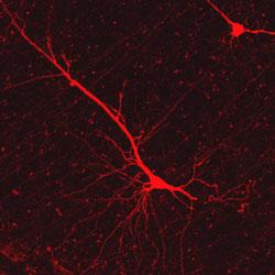 Neural Imaging Module